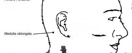 Alarmpunkt Medulla oblongata